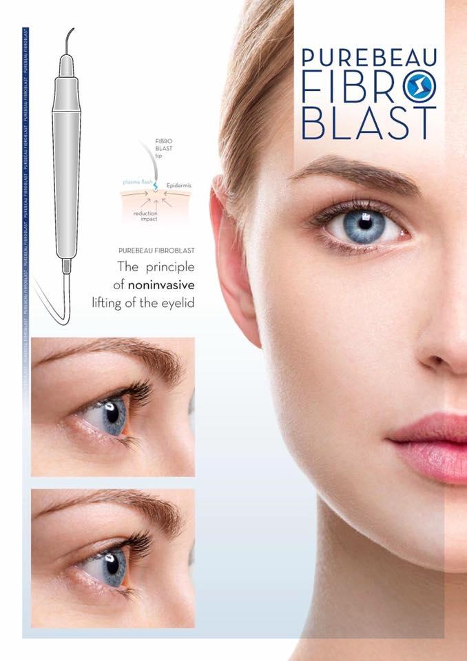 Fibroblast Ballymena