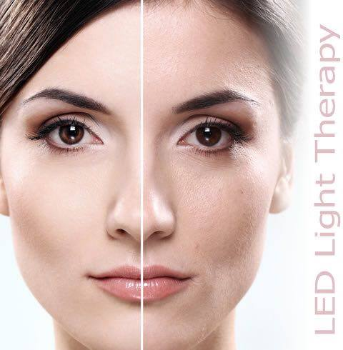 light-therapy-facial-before-and-after